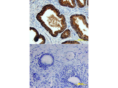 Human p63 / TP73L Biotinylated Antibody