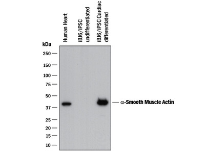 alpha-Smooth Muscle Actin Antibody