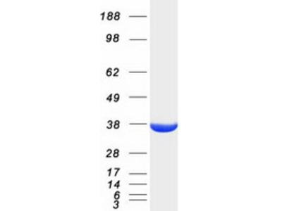 AKR1A1 (NM_006066) Human Mass Spec Standard
