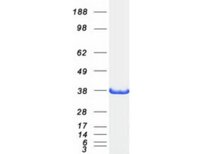 AKR1C2 (NM_001354) Human Mass Spec Standard
