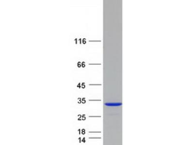 C21ORF56 (SPATC1L) (NM_032261) Human Mass Spec Standard