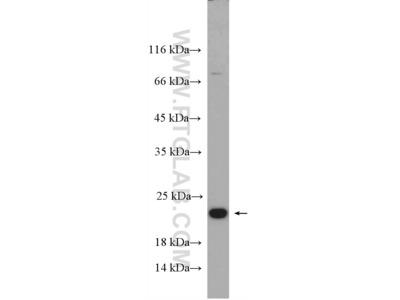 CBFB Polyclonal Antibody
