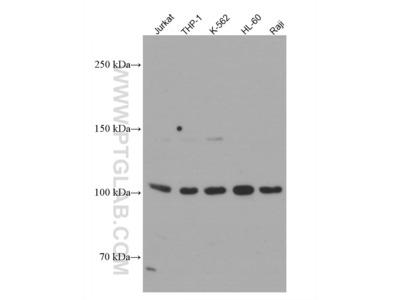 NOD2 Antibody (1A10D1)