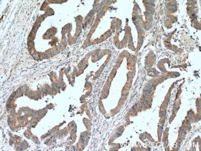 LIPA antibody