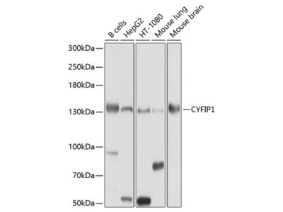 Anti-CYFIP1 antibody