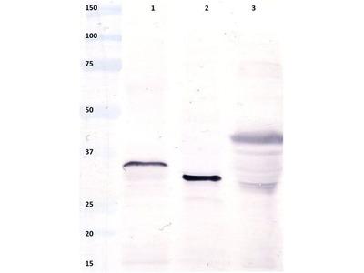 Anti-Gliadin antibody [14D5]