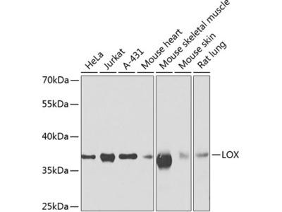 Anti-LOX antibody