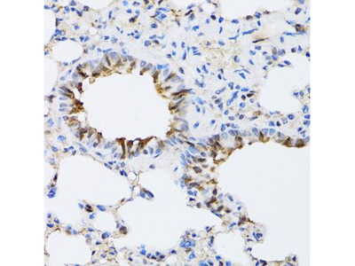 Anti-ARD1A antibody