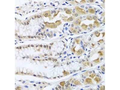 Anti-TRMT1 antibody