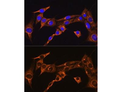 Anti-BDKRB2 antibody