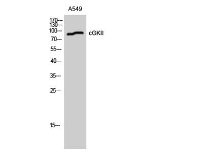 Anti-CGK2 antibody