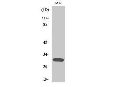 Anti-Inhibin beta C chain antibody
