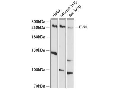 Anti-Envoplakin antibody