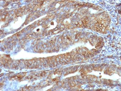 Anti-Vimentin antibody [VM1170]