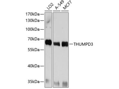 Anti-THUMPD3 antibody