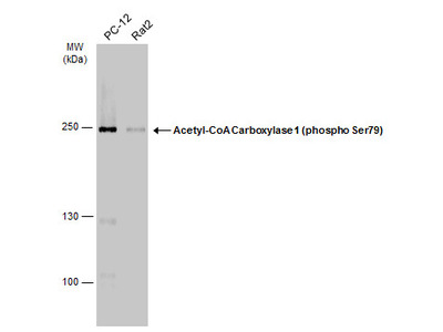Anti-Acetyl-CoA Carboxylase 1 (phospho Ser79) antibody