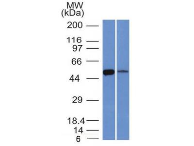 Anti-ALDH1A1 antibody [ALDH1A1/1381]