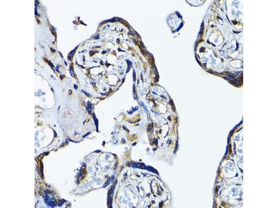 Anti-PRMT5 antibody