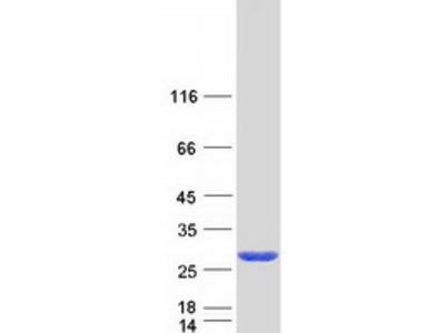 CCDC115 (NM_032357) Human Mass Spec Standard