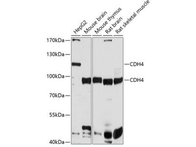 Anti-R-Cadherin antibody