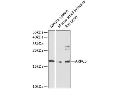 Anti-p16 ARC antibody