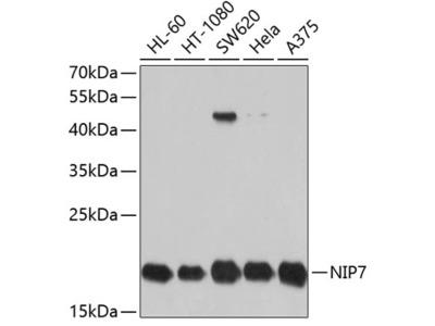 Anti-NIP7 antibody
