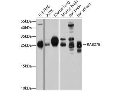 Anti-RAB27B antibody