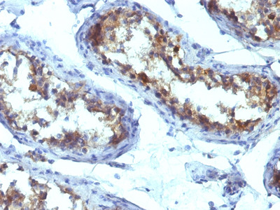 Anti-Alkaline Phosphatase (Tissue Non-Specific) antibody [ALPL/597]