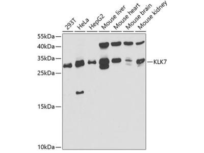 Anti-Kallikrein 7 antibody