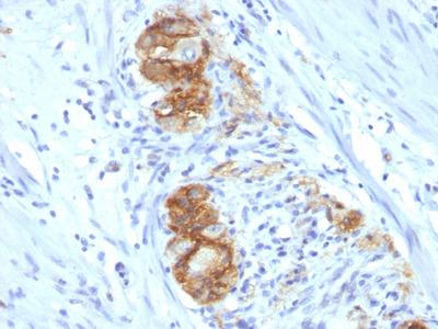 Anti-NCAM antibody [123C3.D5]