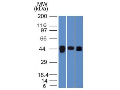 Anti-TIA1 antibody [TIA1/1313]