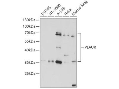Anti-uPAR antibody