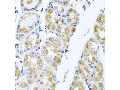 Anti-TMEM43 antibody