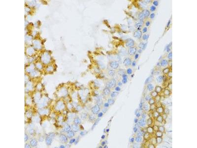 Anti-Pleiotrophin antibody