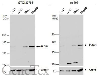 Anti-PLCB1 antibody