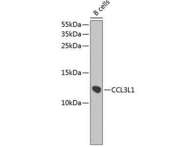 Anti-CCL3L1 antibody