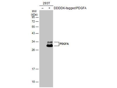 Anti-PDGFA antibody