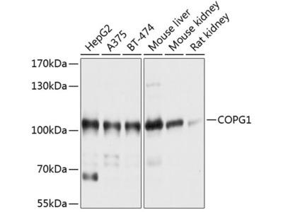 Anti-COPG antibody