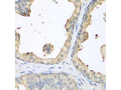Anti-GPI antibody