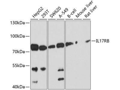 Anti-IL17 Receptor beta antibody