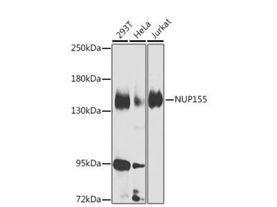 Anti-NUP155 antibody