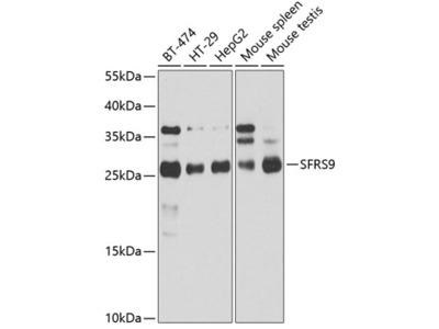 Anti-SFRS9 antibody