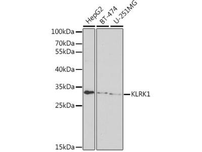 Anti-NKG2D antibody