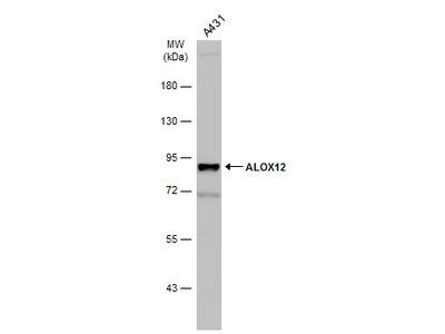 Anti-ALOX12 antibody