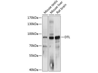 Anti-CDT2 antibody