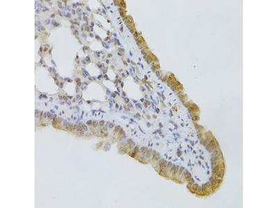 Anti-GPD2 antibody