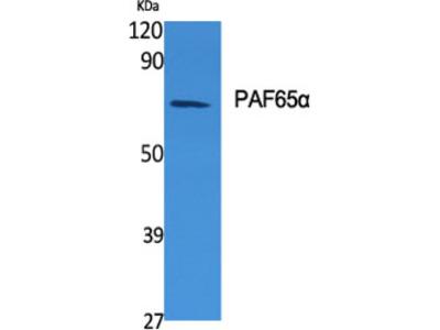 Anti-TAF6L antibody