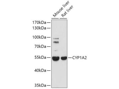 Anti-CYP1A2 antibody
