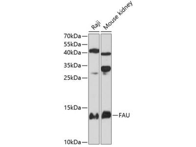 Anti-FAU antibody