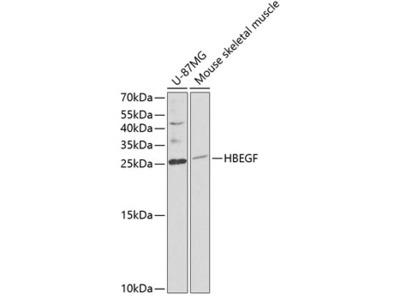 Anti-HB EGF antibody